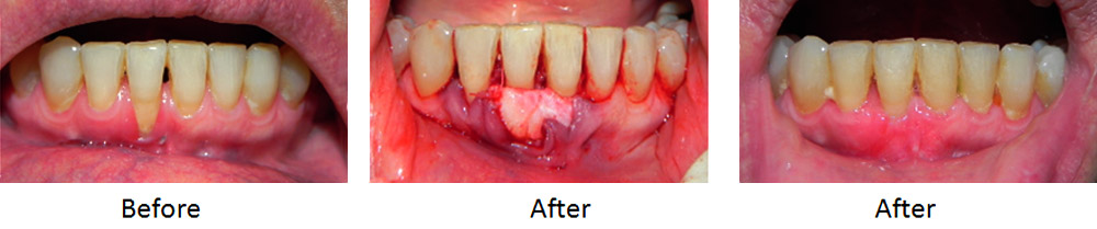 Before and After Gum Treatment