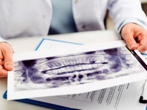 Regenerative Procedures