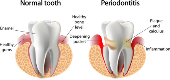 Periodontitis disease and symptoms