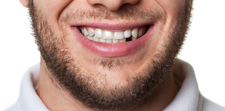 Why you shouldn't ignore missing teeth!