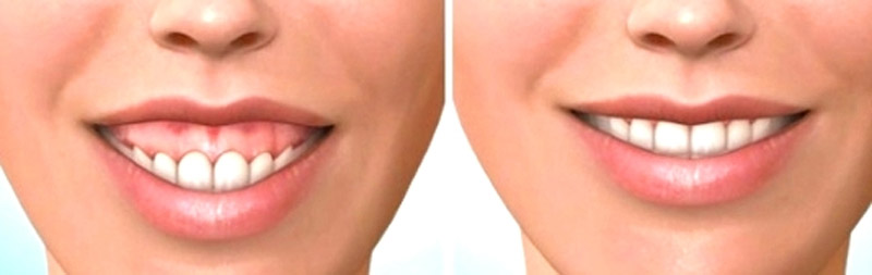 Reduce your gummy smile and regain confidence
