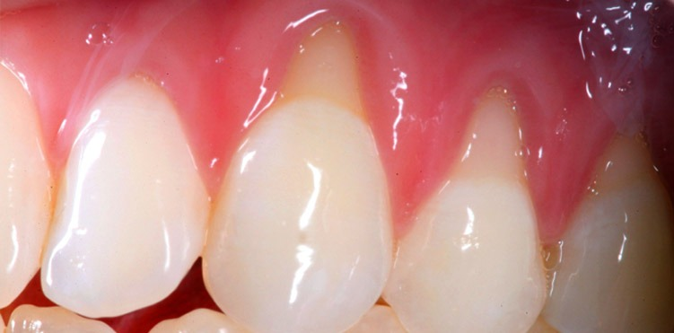Causes and treatment of receding gums