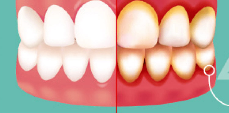 Gingivitis – Causes, Symptoms, Prevention