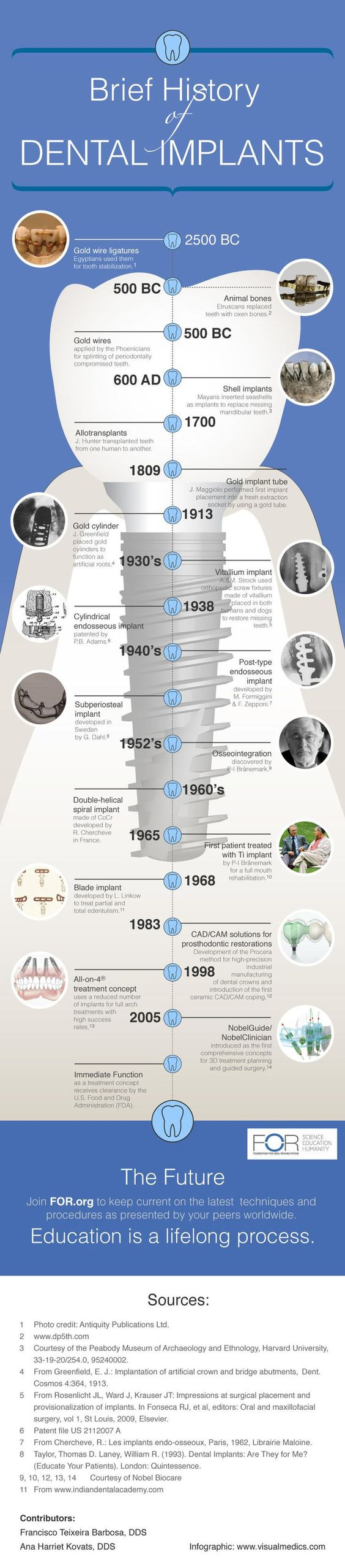 history of implants