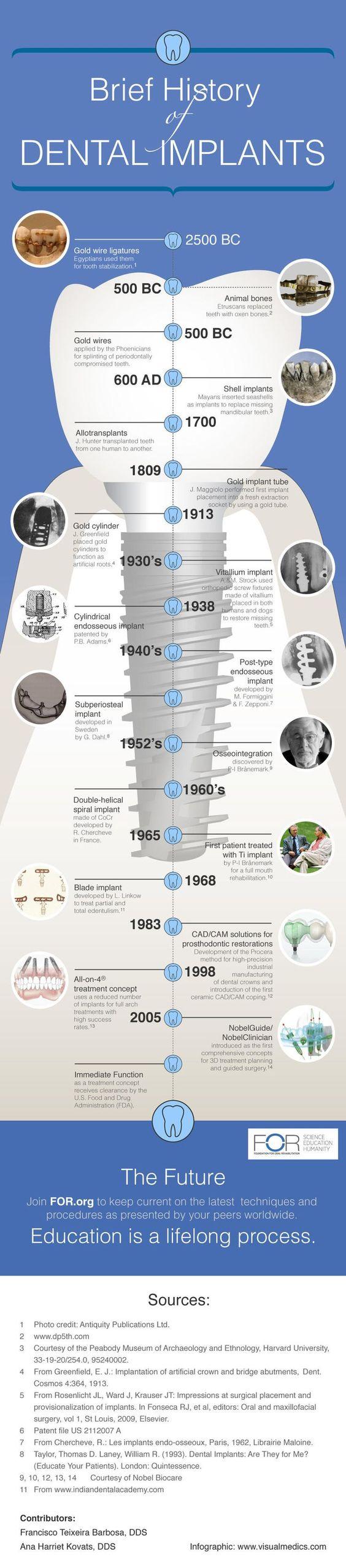 history of implants