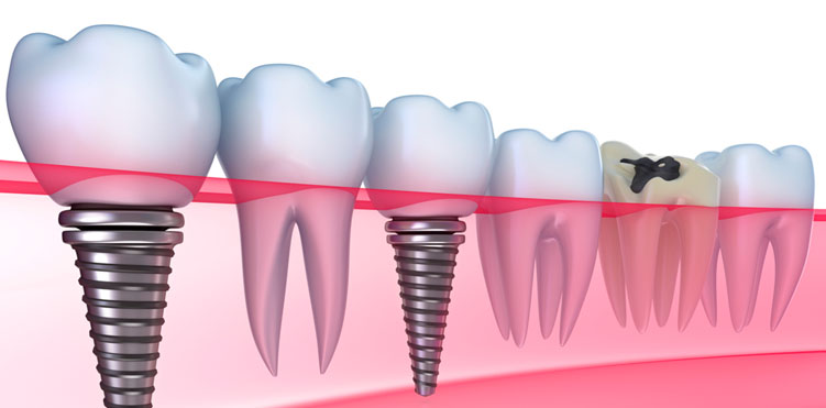 The brief history of implants