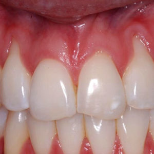 Is Gingival Recession a Lost Cause?