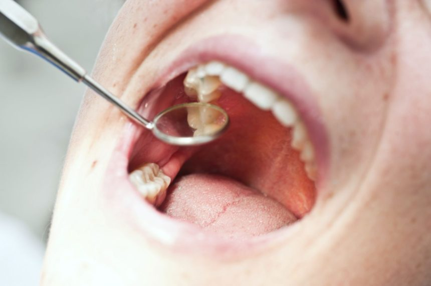 REASONS FOR TOOTH PAIN