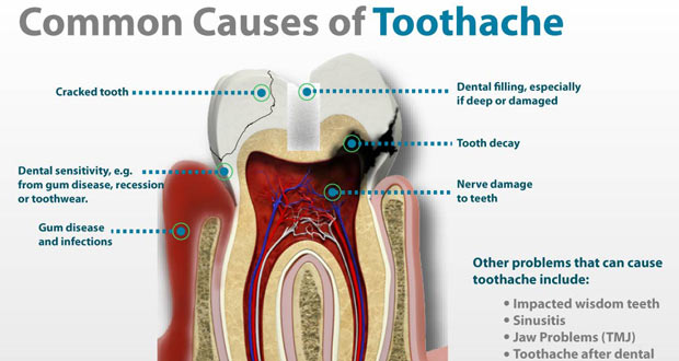 toothache cause