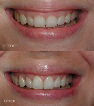 Gum Contouring Causes Procedure Care And Cost